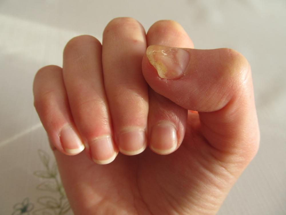 unhas da mão amareladas