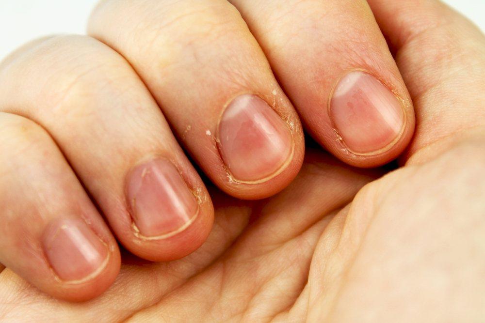unhas da mão fracas
