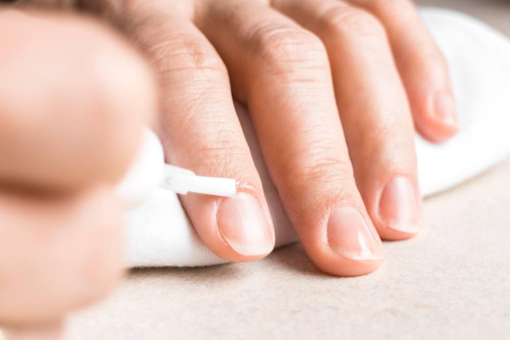 tratamentos para cutículas inflamadas