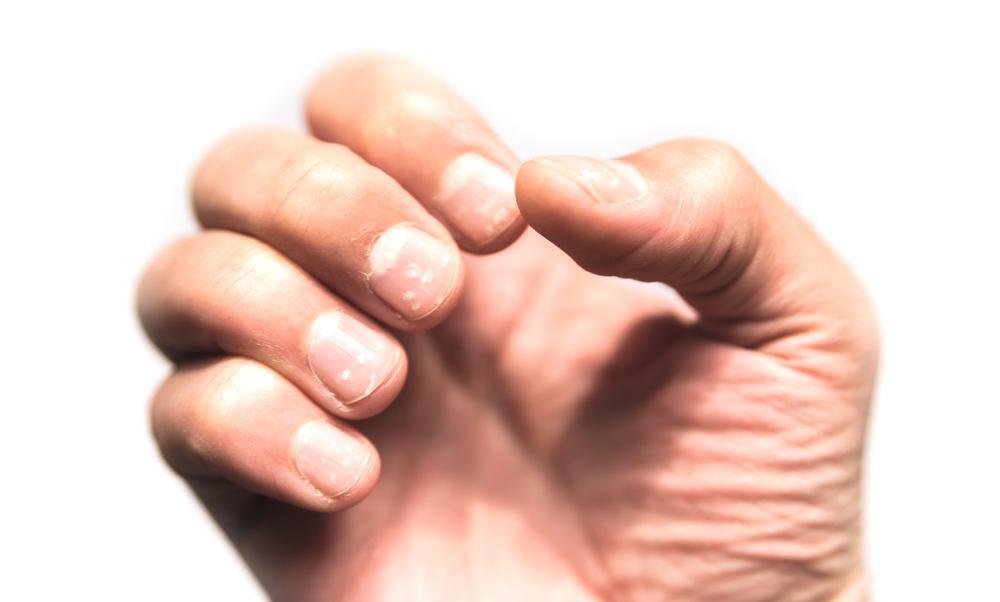 cutículas inflamadas como tratar