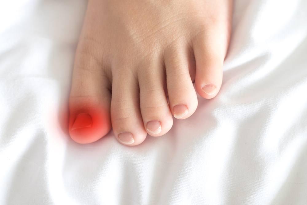 como tratar cutículas inflamadas