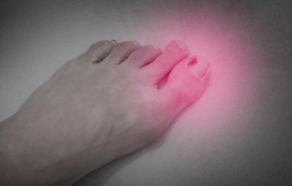 como tratar manchas escuras na unha