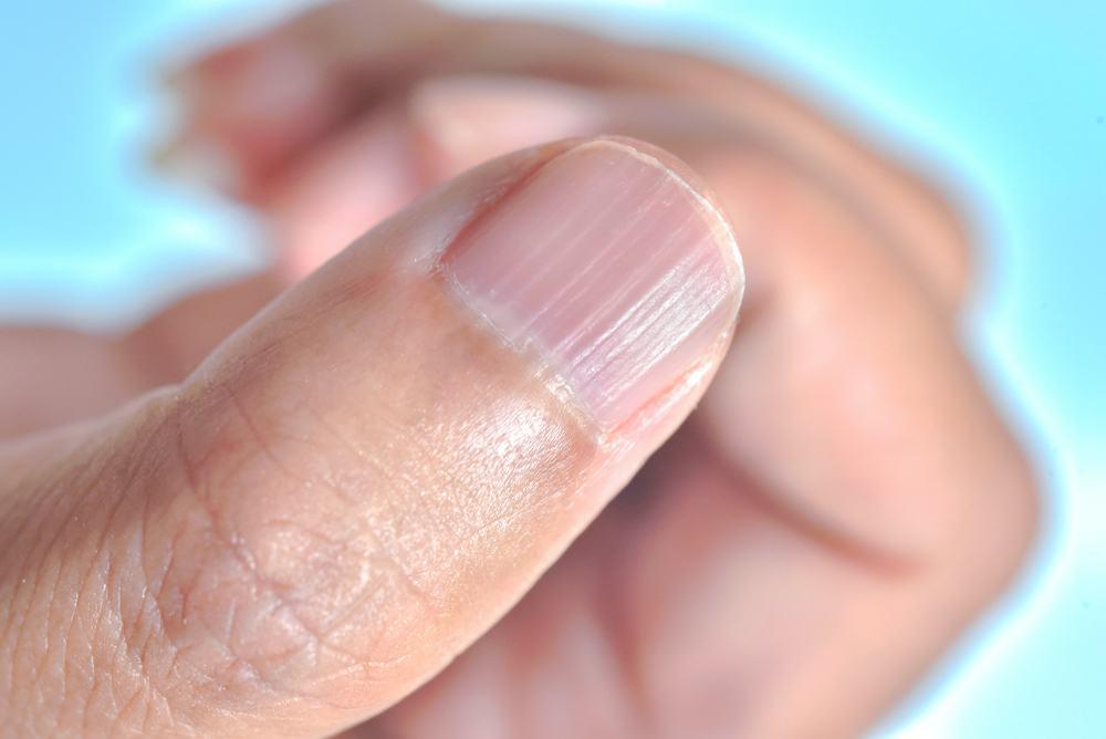 como tratar unhas onduladas