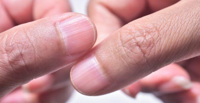 causas das unhas onduladas